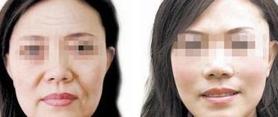 面部除皱手术让年龄成为秘密