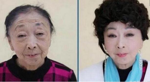 昆明明美整形71岁的老妇整容 嫁给小十四岁男友