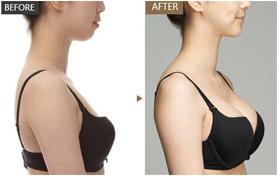 假体隆胸材料是否安全