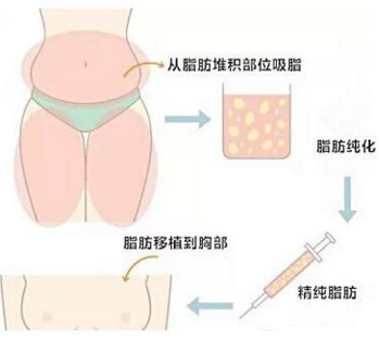 南京万艾特自体脂肪隆胸一般要多少钱