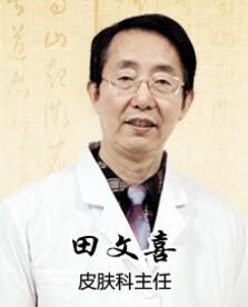 田文喜 邯郸燕赵中医医院皮肤科