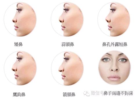 上海爱美仕做鼻综合整形好不好