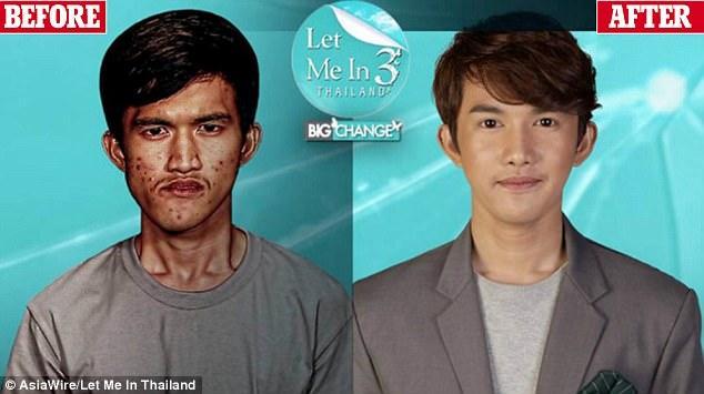北京航天总医院整形泰国小伙丑哭了 前往医院整形后亲妈认不出