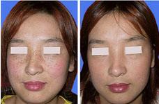 上海东方丽人老年斑的治疗方法