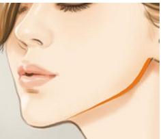 南通玫瑰整形瘦脸针打完有什么感觉,多久能看到效果?