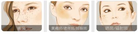 彩光嫩肤祛斑恢复时间需要多久