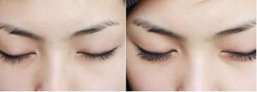 上海蔡仁祥睫毛种植安全吗 眼睛会发炎吗