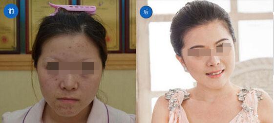 北京幸福医整形医院眉毛种植案例