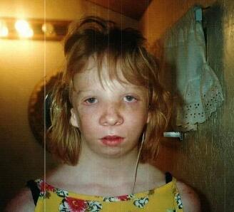 美国女子一出生就患有无脸症 为改变容貌做了16次手术