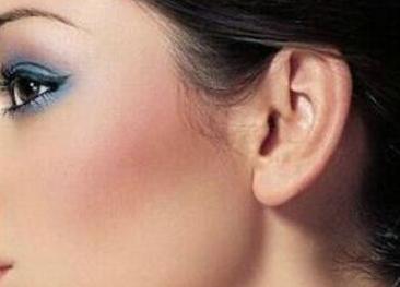 北京叶子耳垂畸形修复后会变形吗