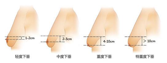 南通城东乳房下垂怎么矫正好