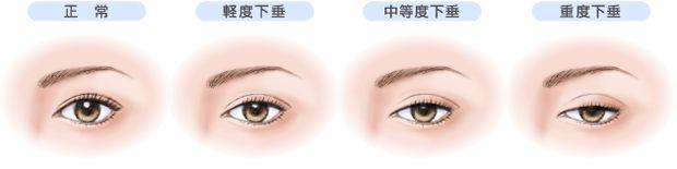 上海铂曼做眼脸下垂矫正效果好吗