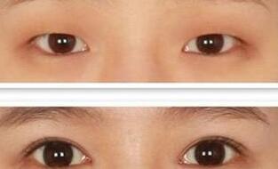 上海安达丽质做重脸术失败后怎么办