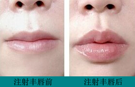 北京大学人民医院整形科注射丰唇怎么做