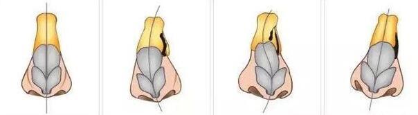 深圳南方激光专科隆鼻子整歪了该怎么办