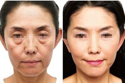 面部皮肤松弛老化怎么办