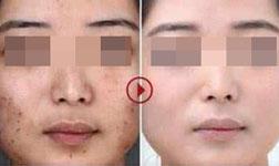 上海保障基地医院彩光嫩肤能收缩毛孔吗