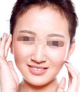 彩光美容后如何选择护肤品