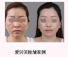 面部皮肤松弛吃什么好 电波拉皮可以提升面部肌肤吗