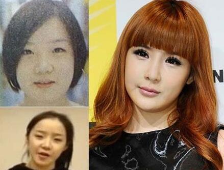 深圳腋秀腋臭韩国女歌手朴春整容 每个女生都会想要变得漂亮