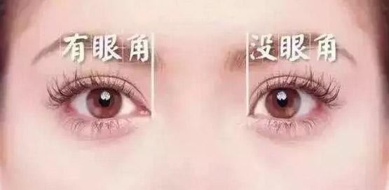 什么眼睛适合开眼角