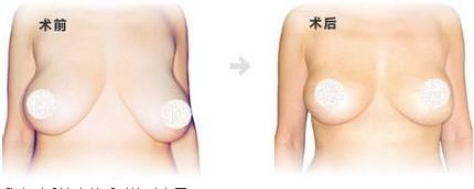 无锡扬名整形医院价格表 乳房矫正多少钱