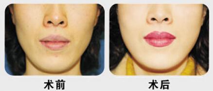 亳州缔美做漂唇有没有副作用