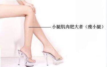 瘦腿针的原理需要打几针有效