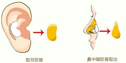 北京嘉和尚亿延长鼻小柱好不好