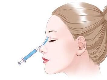 福州弘宇玻尿酸隆鼻会有疤痕吗
