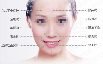 福建莫琳娜射频除皱能解决哪些皱纹