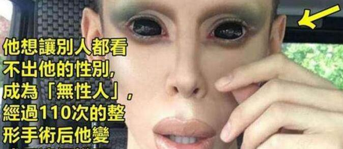 """武汉壹加壹整容医院追求""""无性别""""整形 百次整形后的他变成什么样"""