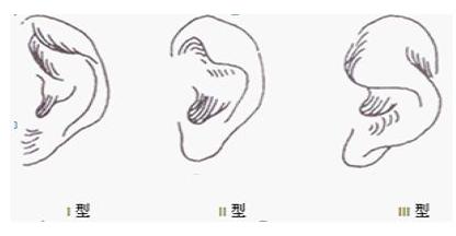 北京美憬杯状耳整形的四种方法