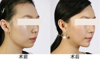 北京美丽有约玻尿酸垫下巴的注意事项