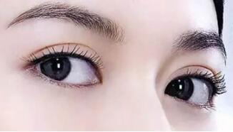 双眼皮的术前的措施