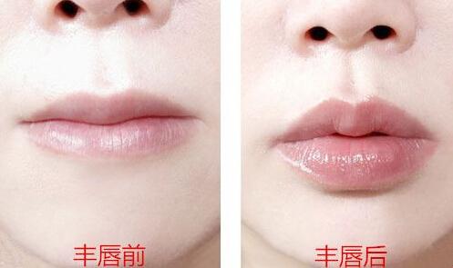 重庆新桥医院注射丰唇的材料有哪些