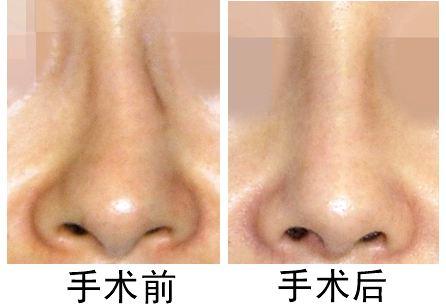 广州艾美歪鼻整形有哪些方法