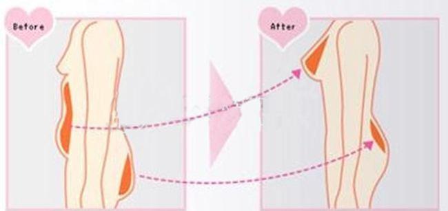 广州鸿业做自体隆胸案例 对比图