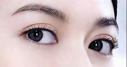 双眼皮的副作用
