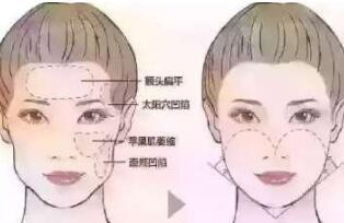 重庆曼格打玻尿酸会不会老的更快