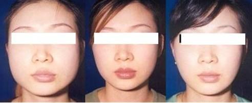 黄石爱康医院注射瘦脸的安全性