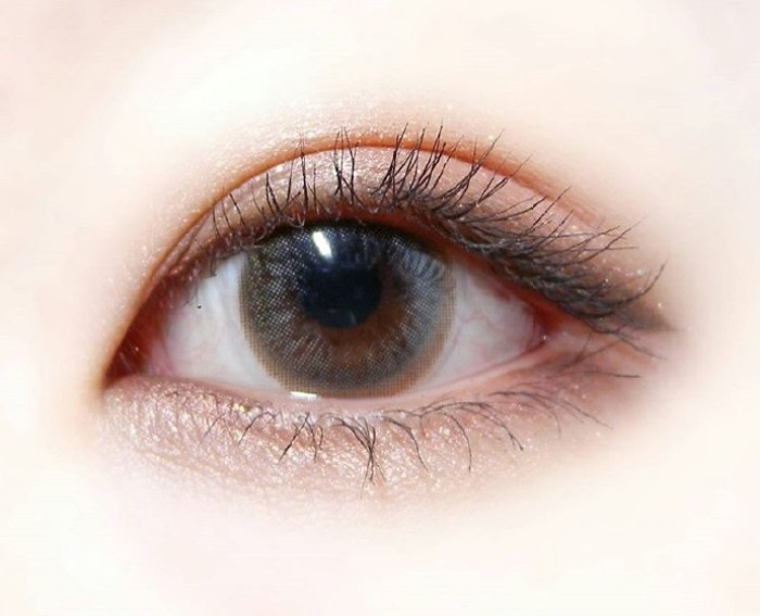 韩式双眼皮手术过程