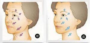 深圳臻瑞芝美医疗美容整形微整形、微创整形 其实有差别