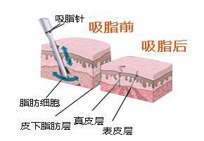 脸部做抽脂手术后如何护理手术部位