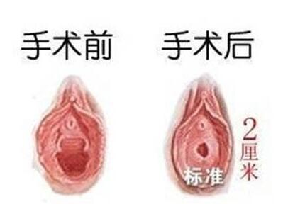 杭州时光处女摸修复 做个完整女人