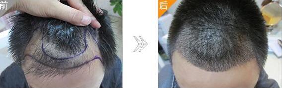 头上有疤不长头发怎么办