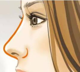 宁波海曙米丽鼻尖整形矫正的材料有哪些