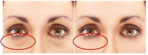 做手术祛眼袋会不会伤害到眼睛