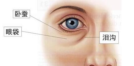 珠海吉莲何奎祛泪沟纹 让眼睛重新焕发光彩