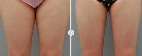 大腿吸脂能多次进行吗